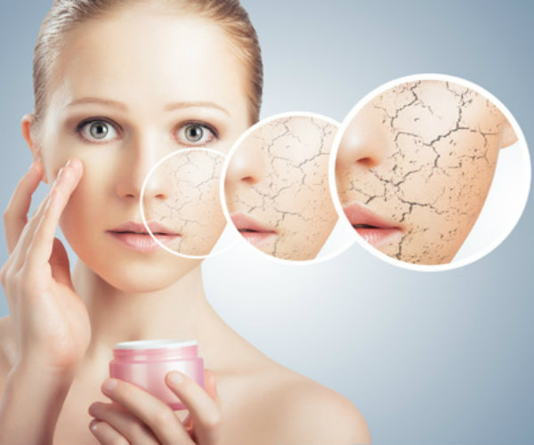 5 winter skin care hacks